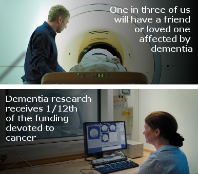 Dementia Research Infographic - One in three of us will have a friend or loved one affected by dementia.  Dementia research receives 1/12th of the funding devoted to cancer.