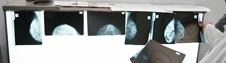 breast-cancerpr