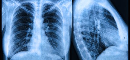 Top research priorities for cystic fibrosis treatments revealed