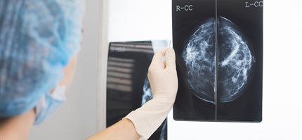Drugs for invasive breast cancer 'could treat earliest stages of the disease'