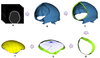 Reconstruction for ISF based cranial plate