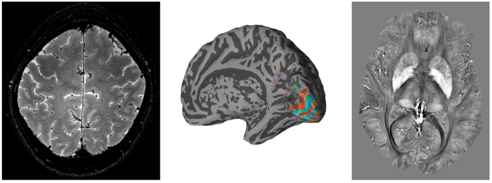 High resolution anatomical and functional brain images produced on the 7T scanner