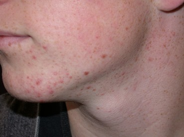 Acne systematic reviews - The University of Nottingham
