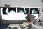 Distinct biology of breast cancer in older women