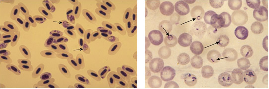 Plasmodium relictum infecting the red blood cells of its avian host (L), Babesia microti infecting cells of its mammalian host (R)