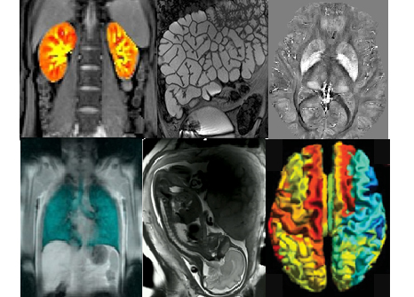 Collage image of patient imaging - SPMIC
